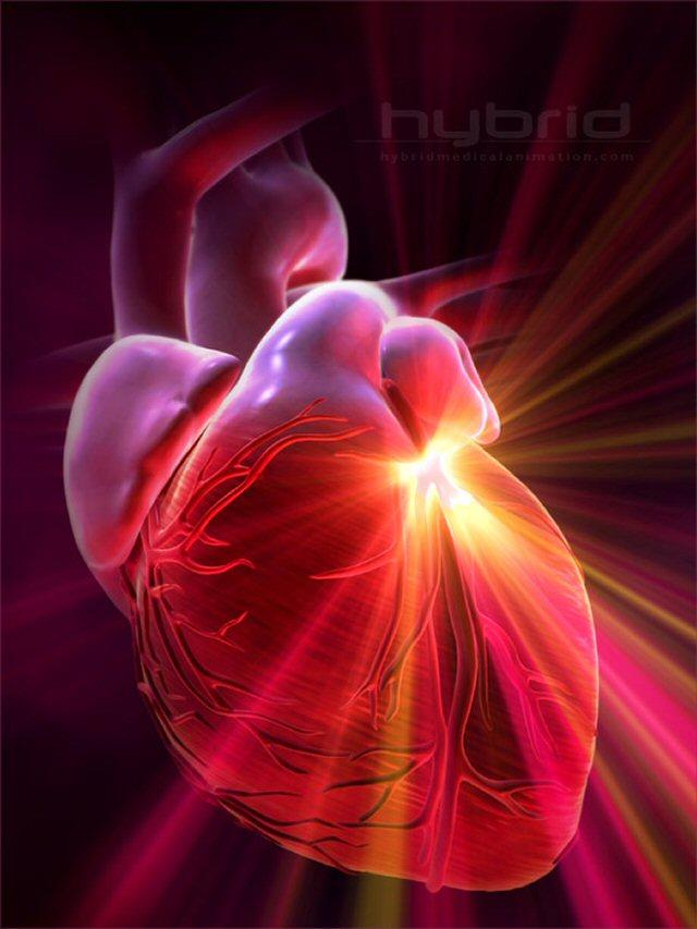 HeartAttackAA.jpg